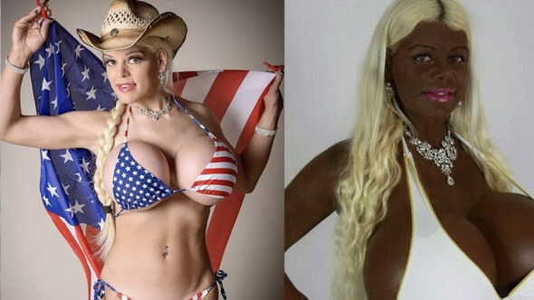 White Woman Turns Her Skin Black With Melanin Injections – Martina Big